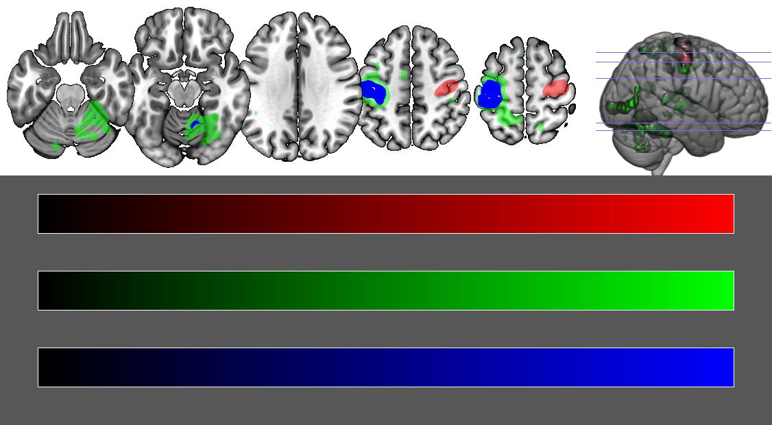 NITRC: MRIcroGL: open-discussion