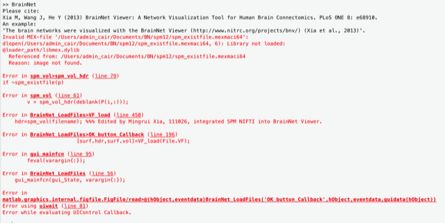 NITRC: BrainNet Viewer: help