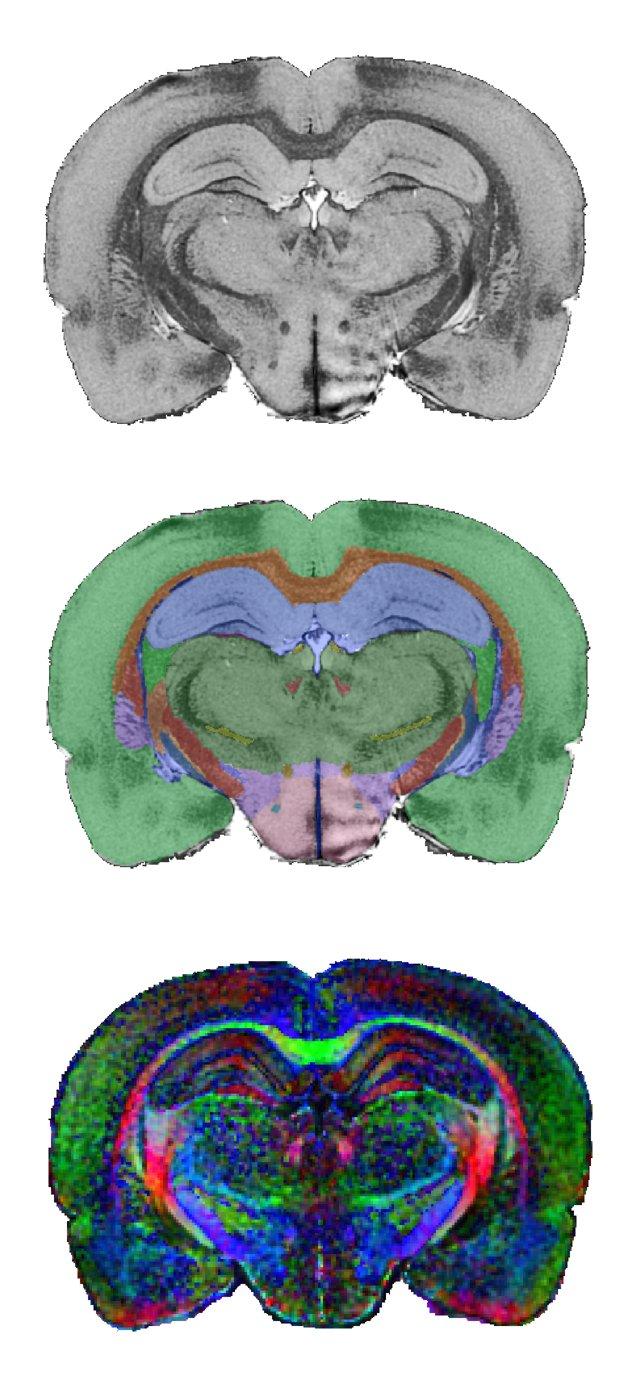 Nitrc Waxholm Space Atlas Of The Sprague Dawley Rat Brain