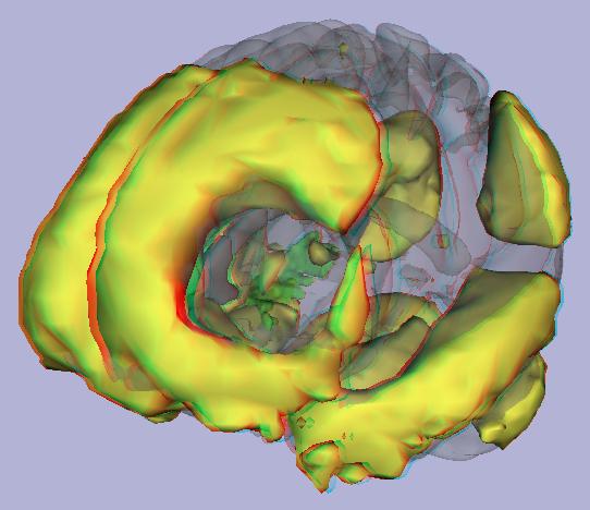 NITRC: Stereoscopic Atlas of Intrinsic Brain Networks (SAIBN):