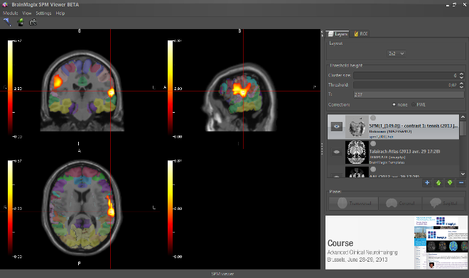BrainMagix SPM Viewer: fMRI blobs fused with Brodmann atlas