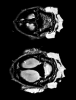 Cranial sutures highlighted in the b0 image