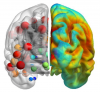 Graphic for NetPET: Covariance statistics and network analysis of brain PET imaging studies