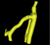 A segmented vascular tree using VMTKEasyLevelSetSegmentation