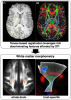 White matter morphometry with DTI-TK
