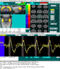 rat phMRI map, time course, and alignment