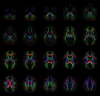 Diffusion anisotropy color maps generated from mean tensors