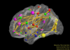Modularity of the Human Brain
