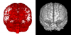 Meta-missingness (red) and significant findings (gray).