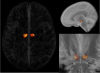 Atlas of the Sub-thalamic Nucleus