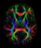 Simulated DW-MRI Brain Data Sets for Quantitative Evaluation of Estimated Fiber Orientations