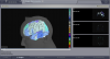Brain Visualizer with simulated activity on regions