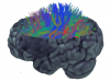 individual with stroke: tractography